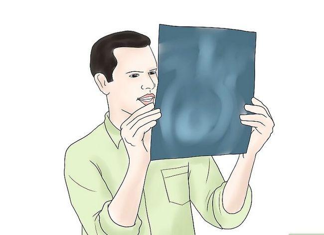 Prent getiteld Sorg vir jou vrou of vriendin tydens swangerskap. Stap 5