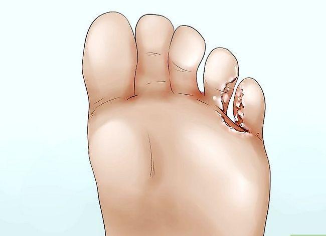 Beeld getiteld Cure Atleet`s Foot Naturally Step 1