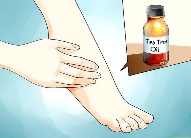 Beeld getiteld Cure Atleet`s Foot Naturally Step 9