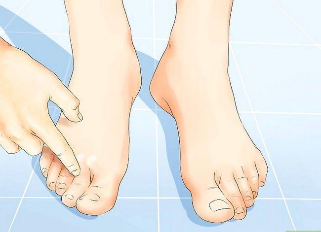 Beeld getiteld Cure Atleet`s Foot Naturally Step 10