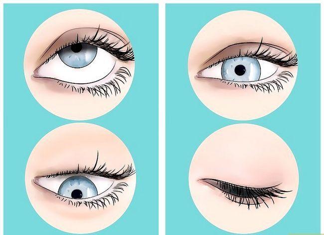 Prent getiteld Get rid of Eye Floaters Stap 5