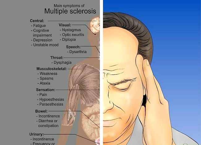 Prent getiteld Multiple Sclerosis diagnose Stap 4