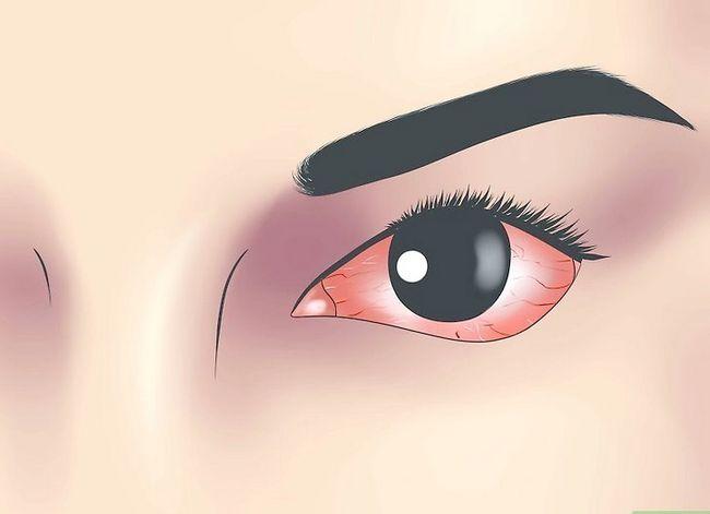 Prent getiteld Diagnose Pink Eye Step 1