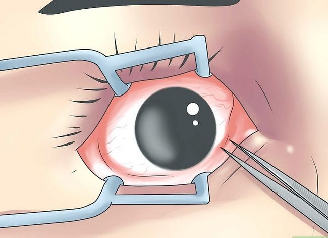 Prent getiteld Diagnose Pink Eye Step 3