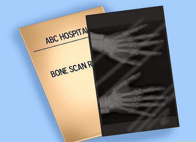 Beeld getiteld Verstaan die resultate van `n been scan. Stap 2