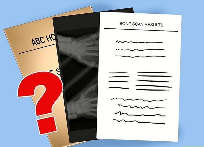 Beeld getiteld Verstaan die resultate van `n Bone Scan Stap 7