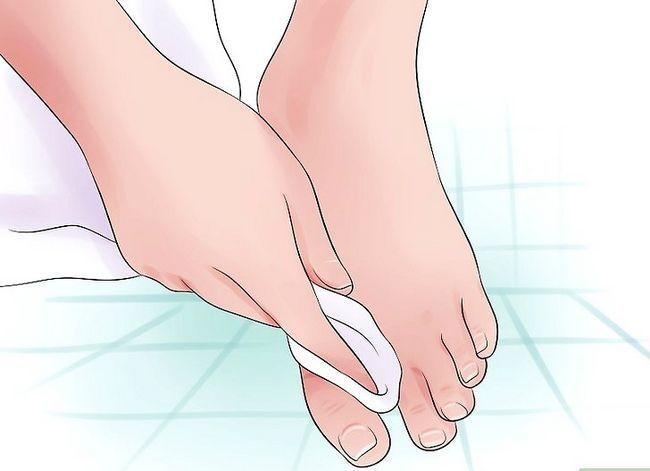 Prent getiteld Voorkom stinkende voete Stap 3