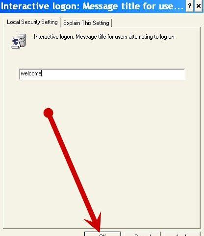 Prentjie getiteld `n Gebruikersooreenkoms word vertoon by opstarten in Windows XP Stap 6