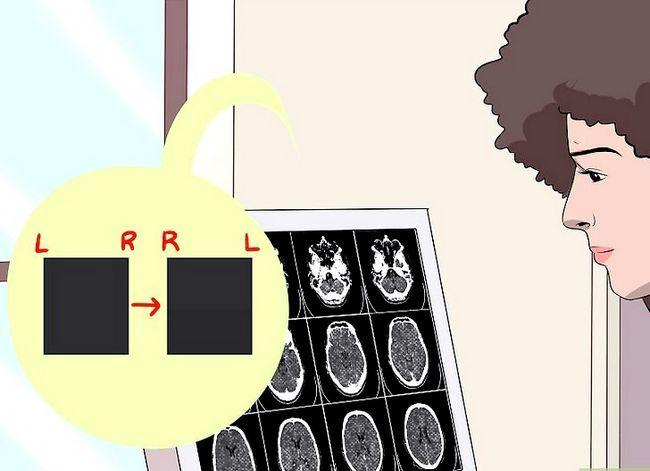 Beeld getiteld Lees `n CT Scan Stap 5