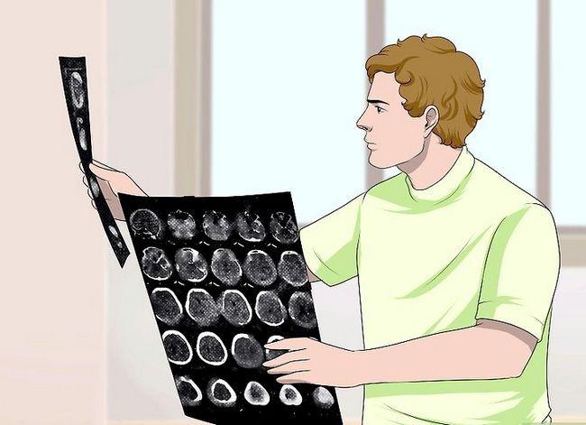 Prent getiteld Lees `n CT scan stap 8