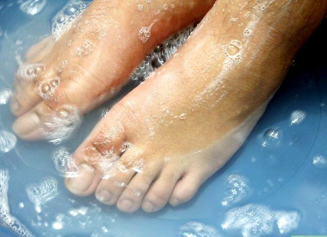 Prent getiteld Hou jou voete en Toenails Gesonde Stap 1