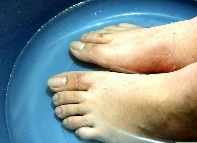 Prent getiteld Hou jou voete en toenails Gesonde Stap 2