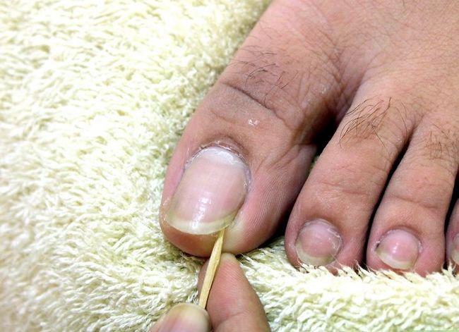 Prent getiteld Hou jou voete en Toenails Gesonde Stap 3