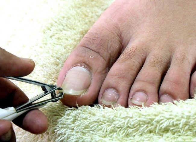 Prent getiteld Hou jou voete en toenails Gesonde Stap 4