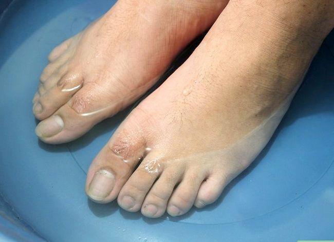 Prent getiteld Hou jou voete en toenails Gesonde Stap 7