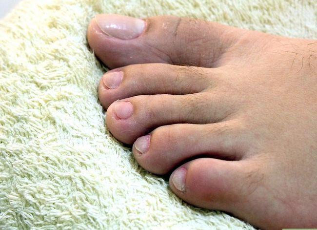 Prent getiteld Hou jou voete en toenails Gesonde Stap 10