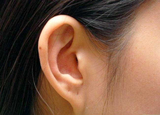 Prent getiteld Verhoed gehoorverlies Stap 2