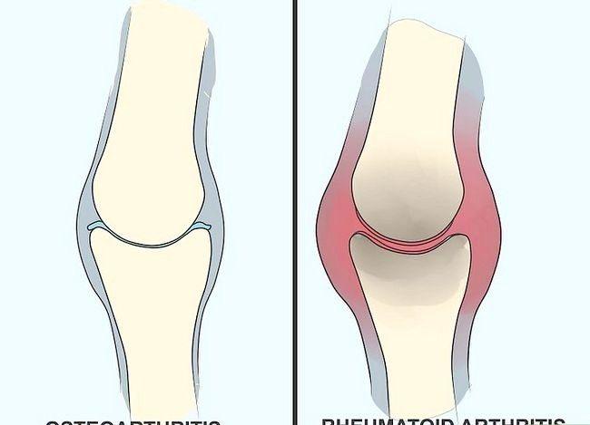 Prent Titel Genoemde Artritis Simptome Stap 11