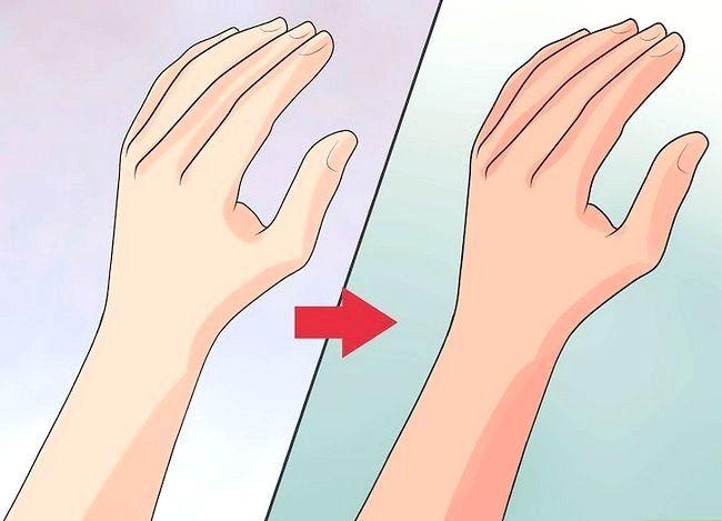 Prent getiteld Artritis simptome herken Stap 8