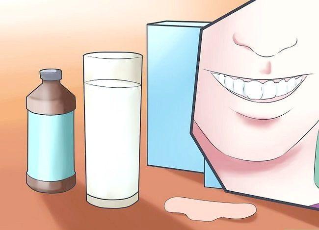 Prent getiteld Glimlag wanneer jy dink jy het slegte tande Stap 7