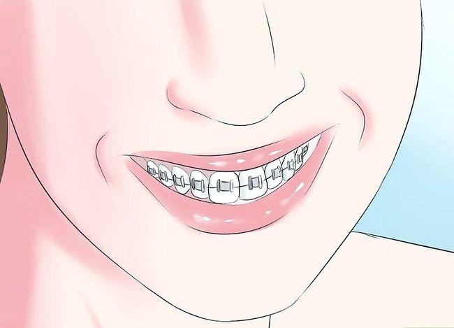 Prent getiteld Glimlag wanneer jy dink jy het slegte tande Stap 8