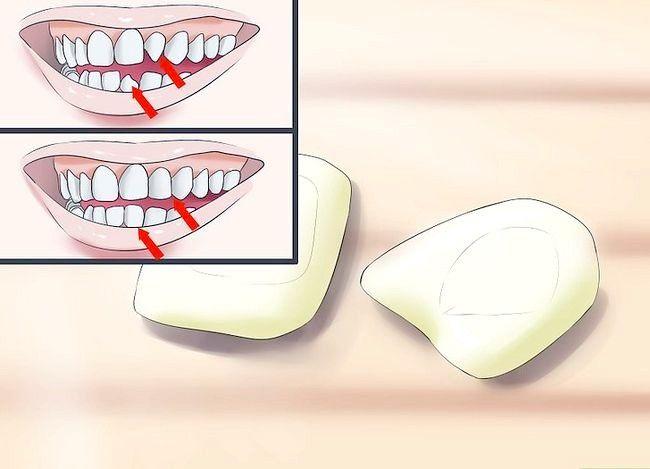 Prent getiteld Glimlag wanneer jy dink jy het slegte tande Stap 9