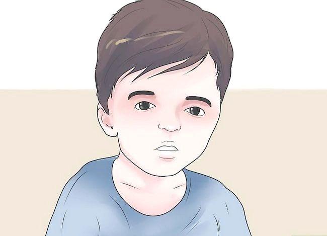Prent getiteld Behandel `n kind met Apert-sindroom Stap 4