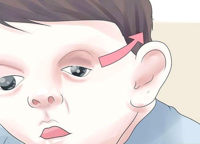 Prent getiteld Behandel `n kind met Apert-sindroom Stap 5