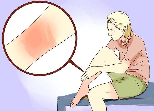 Hoe om brandwonde te behandel met heuning
