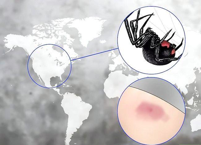 Prent getiteld Behandel Spider Bites Stap 4