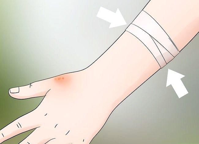 Prent getiteld Behandel Spider Bites Stap 8