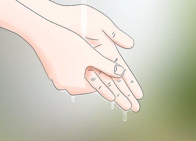 Prent getiteld Behandel Spider Bites Stap 10